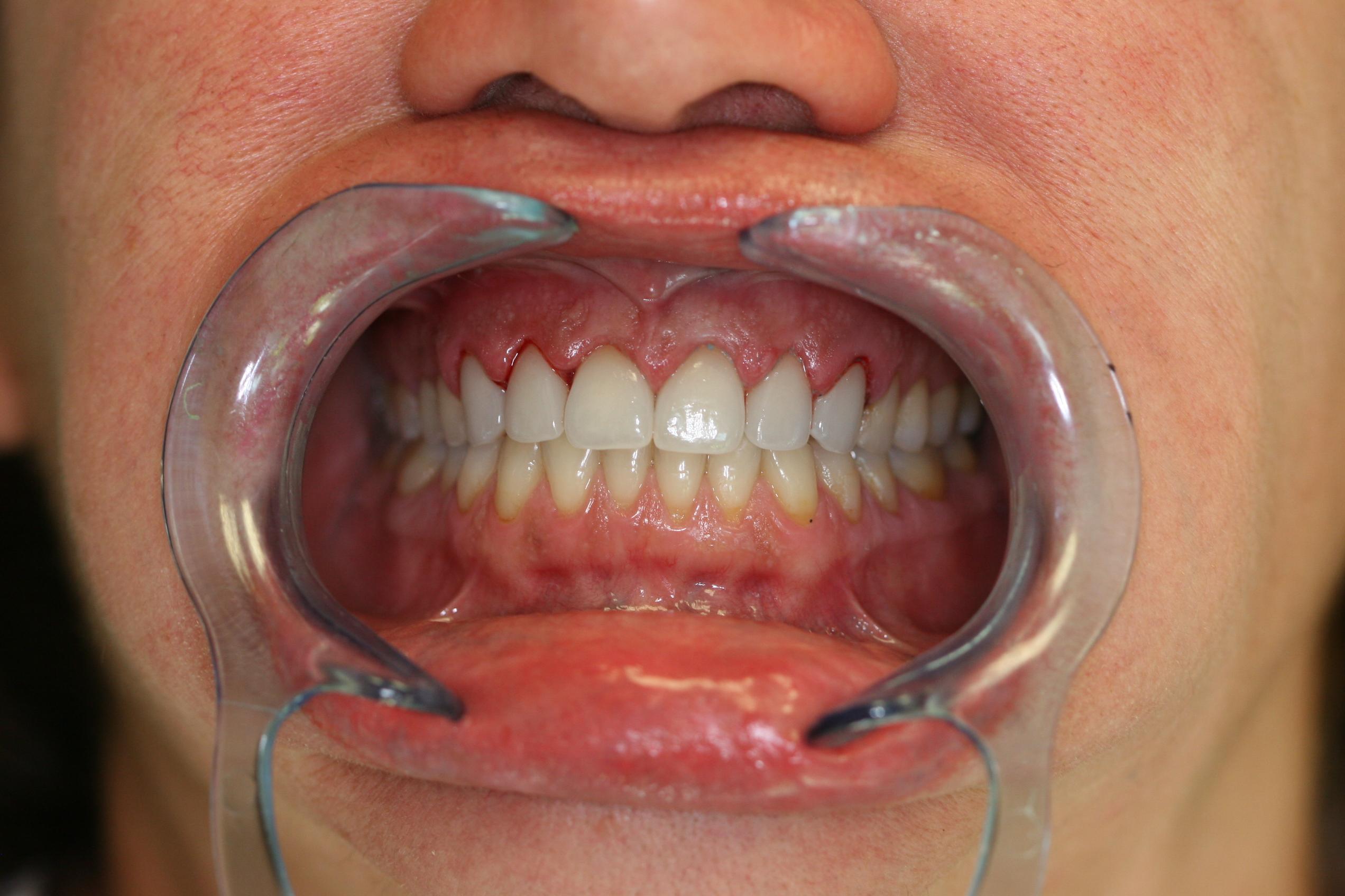dental patient after 8