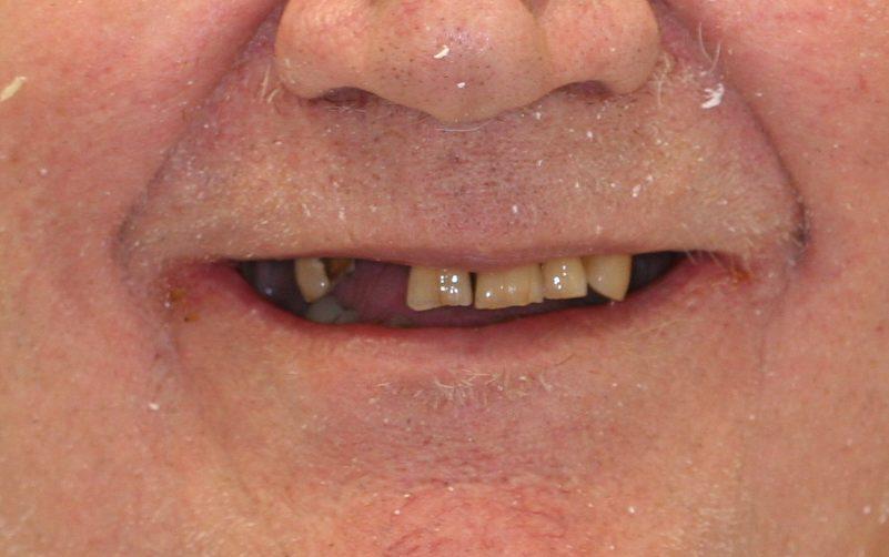 dental patient 6 before