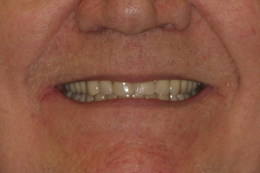 dental patient 6 after