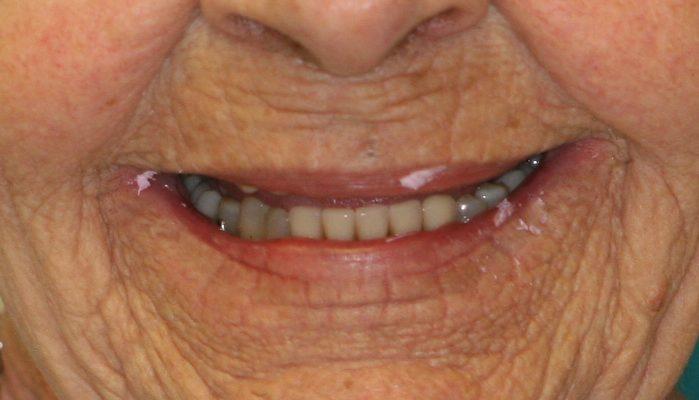dental patient 7 before