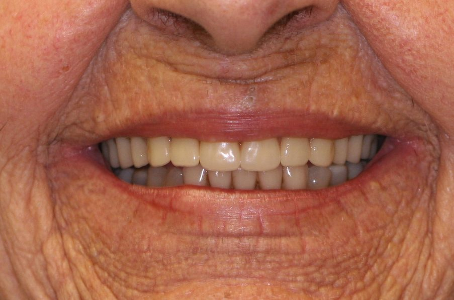 dental patient 7 after