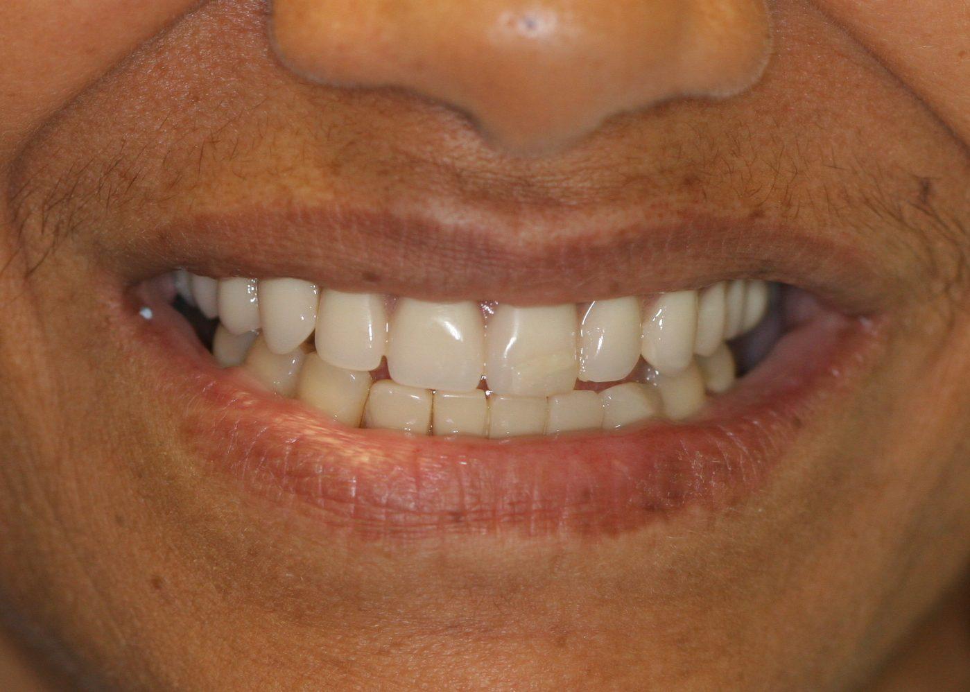 dental patient before 9
