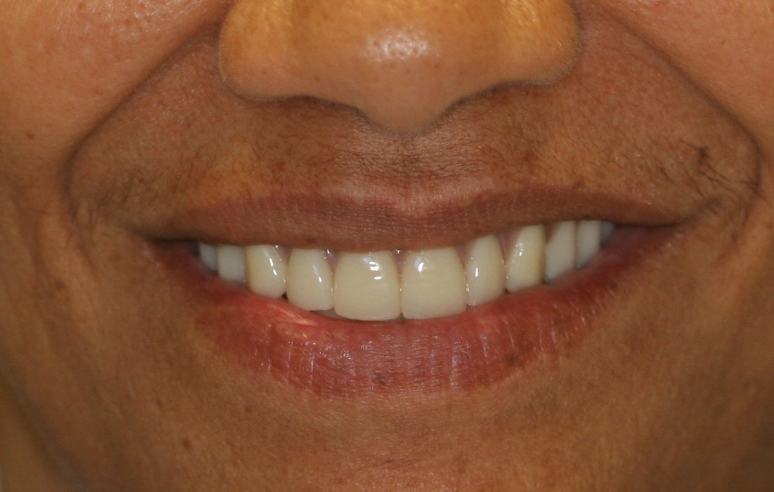 dental patient after 9